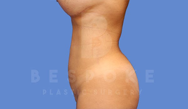 Liposuction Gallery - Patient 4657494 - Image 2