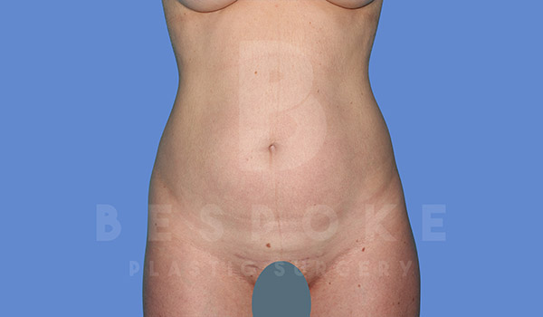 Liposuction Gallery - Patient 4657495 - Image 4