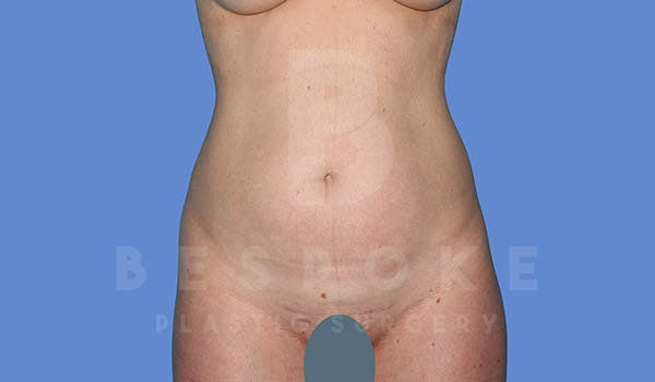 Liposuction Gallery - Patient 4657495 - Image 1