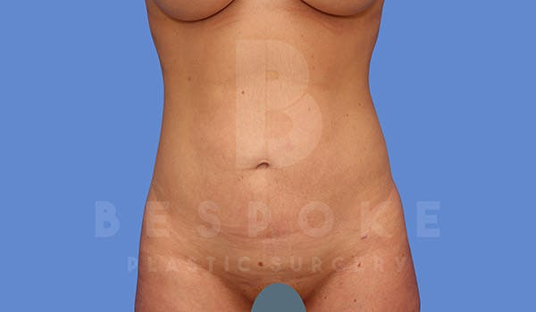 Liposuction Gallery - Patient 4657495 - Image 2