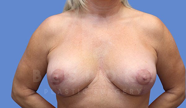 Breast Lift With Implants Gallery - Patient 4657496 - Image 2