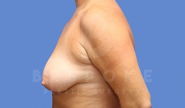 Breast Lift With Implants Gallery - Patient 4657496 - Image 3