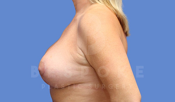 Breast Lift With Implants Gallery - Patient 4657496 - Image 4