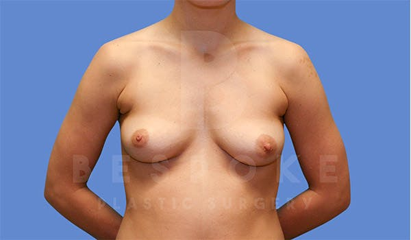 Breast Augmentation Gallery - Patient 4670730 - Image 1