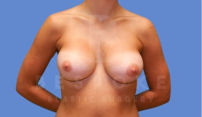 Breast Augmentation Gallery - Patient 4670730 - Image 2