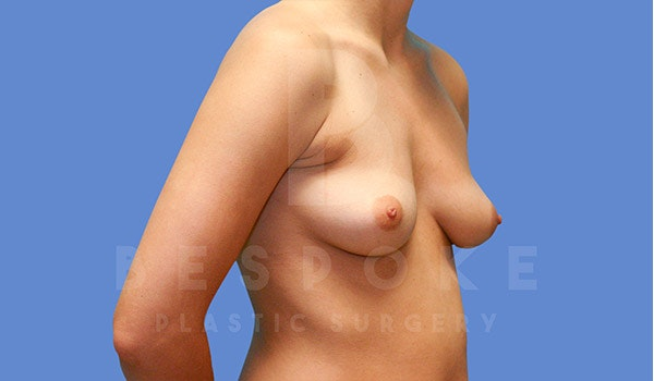 Breast Augmentation Gallery - Patient 4670730 - Image 3
