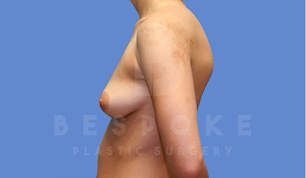Breast Augmentation Gallery - Patient 4670730 - Image 5