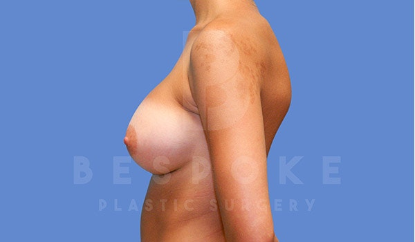 Breast Augmentation Gallery - Patient 4670730 - Image 6