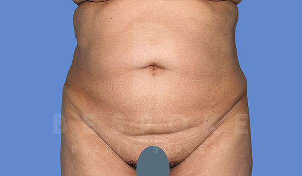 Tummy Tuck Gallery - Patient 4670971 - Image 9