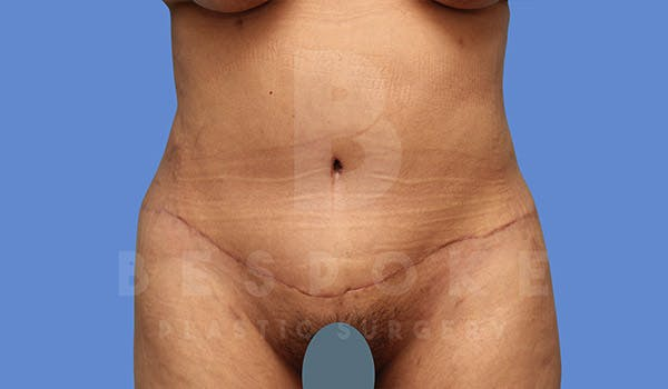 Tummy Tuck Gallery - Patient 4670971 - Image 2