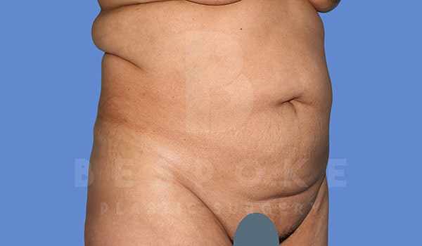 Tummy Tuck Gallery - Patient 4670971 - Image 3