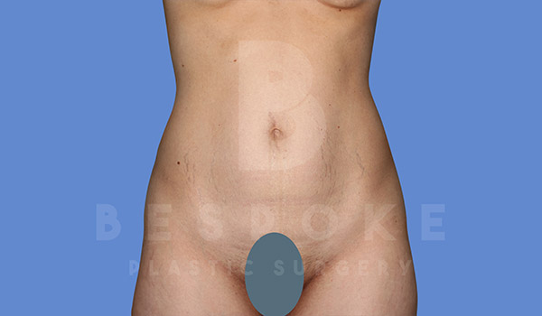 Tummy Tuck Gallery - Patient 4670972 - Image 10