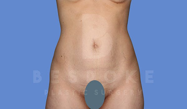 Tummy Tuck Gallery - Patient 4670972 - Image 1