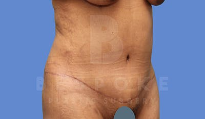 Tummy Tuck Gallery - Patient 4670971 - Image 4
