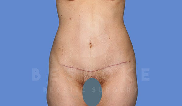 Tummy Tuck Gallery - Patient 4670972 - Image 2