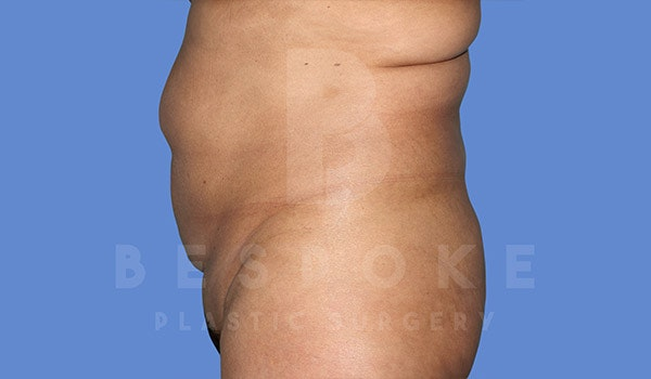 Tummy Tuck Gallery - Patient 4670971 - Image 5