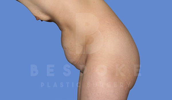 Tummy Tuck Gallery - Patient 4670972 - Image 3