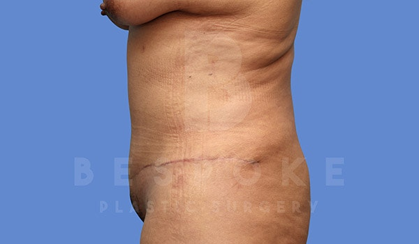 Tummy Tuck Gallery - Patient 4670971 - Image 6