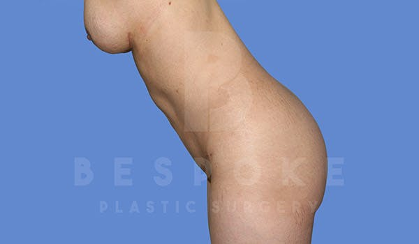Tummy Tuck Gallery - Patient 4670972 - Image 4