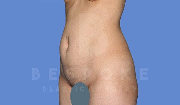Tummy Tuck Gallery - Patient 4670972 - Image 5