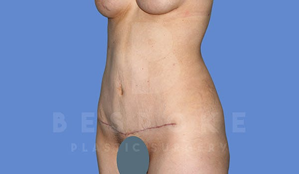 Tummy Tuck Gallery - Patient 4670972 - Image 6