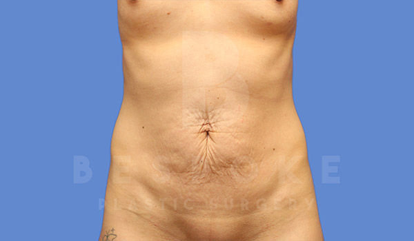 Tummy Tuck Gallery - Patient 4709955 - Image 11