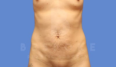 Tummy Tuck Gallery - Patient 4709955 - Image 1