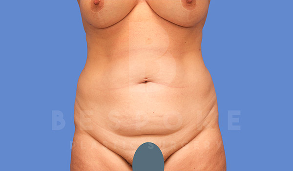 Tummy Tuck Gallery - Patient 4709956 - Image 12