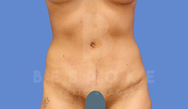 Tummy Tuck Gallery - Patient 4709955 - Image 2