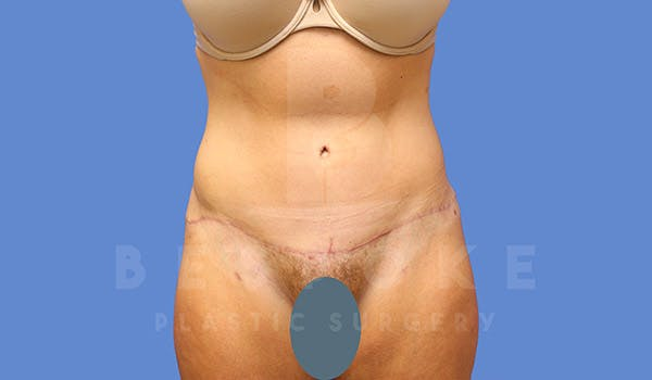 Tummy Tuck Gallery - Patient 4709956 - Image 2