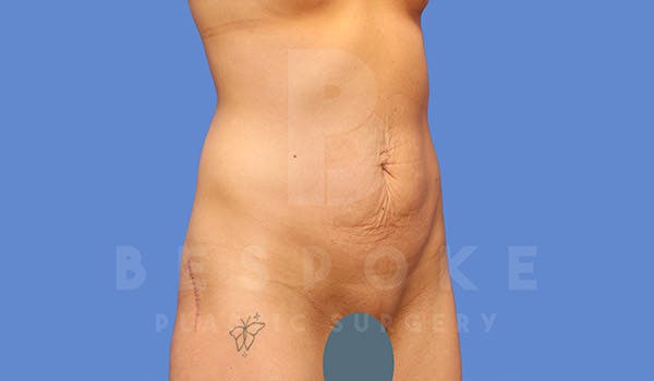 Tummy Tuck Gallery - Patient 4709955 - Image 3
