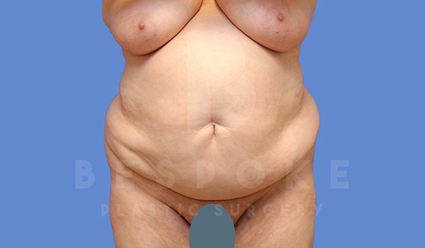 Tummy Tuck Gallery - Patient 4709957 - Image 13