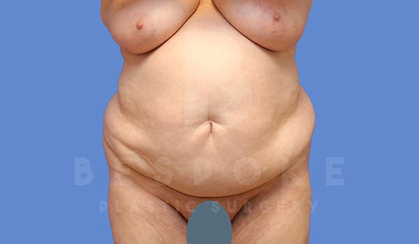 Tummy Tuck Gallery - Patient 4709957 - Image 1