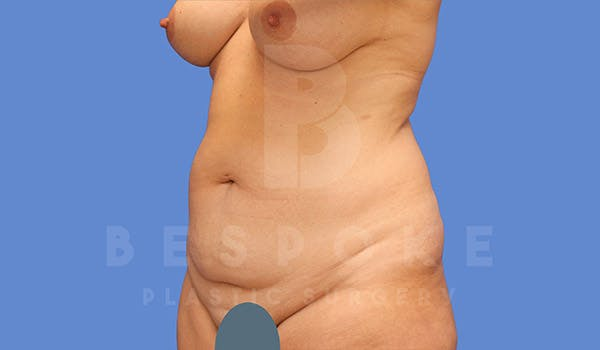 Tummy Tuck Gallery - Patient 4709956 - Image 3