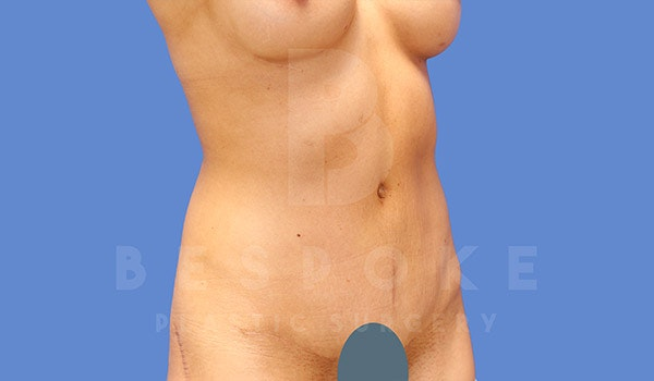 Tummy Tuck Gallery - Patient 4709955 - Image 4