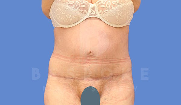 Tummy Tuck Gallery - Patient 4709957 - Image 2