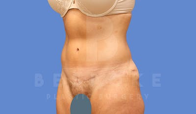Tummy Tuck Gallery - Patient 4709956 - Image 4