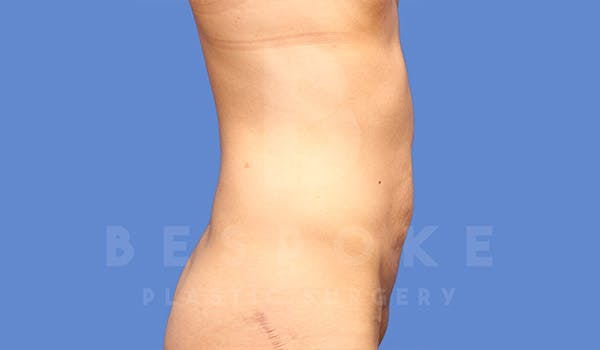 Tummy Tuck Gallery - Patient 4709955 - Image 5