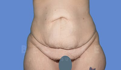 Tummy Tuck Gallery - Patient 4709958 - Image 1