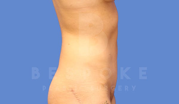 Tummy Tuck Gallery - Patient 4709955 - Image 6