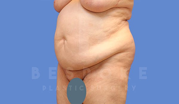 Tummy Tuck Gallery - Patient 4709957 - Image 3