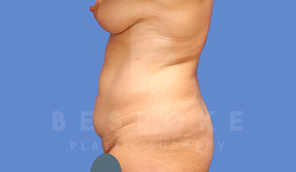 Tummy Tuck Gallery - Patient 4709956 - Image 5