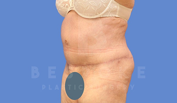 Tummy Tuck Gallery - Patient 4709957 - Image 4