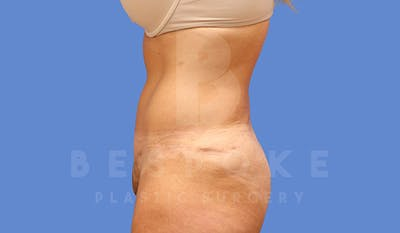 Tummy Tuck Gallery - Patient 4709956 - Image 6