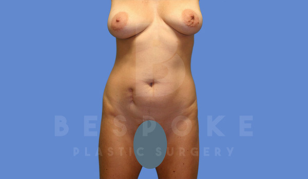 Tummy Tuck Gallery - Patient 4709959 - Image 15