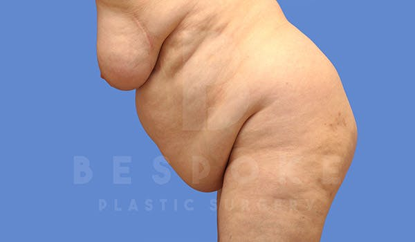 Tummy Tuck Gallery - Patient 4709957 - Image 5
