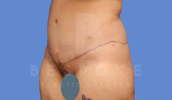 Tummy Tuck Gallery - Patient 4709958 - Image 4