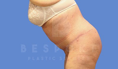 Tummy Tuck Gallery - Patient 4709957 - Image 6