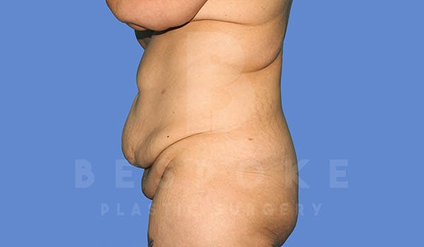 Tummy Tuck Gallery - Patient 4709958 - Image 5