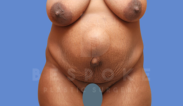 Tummy Tuck Gallery - Patient 4709960 - Image 16
